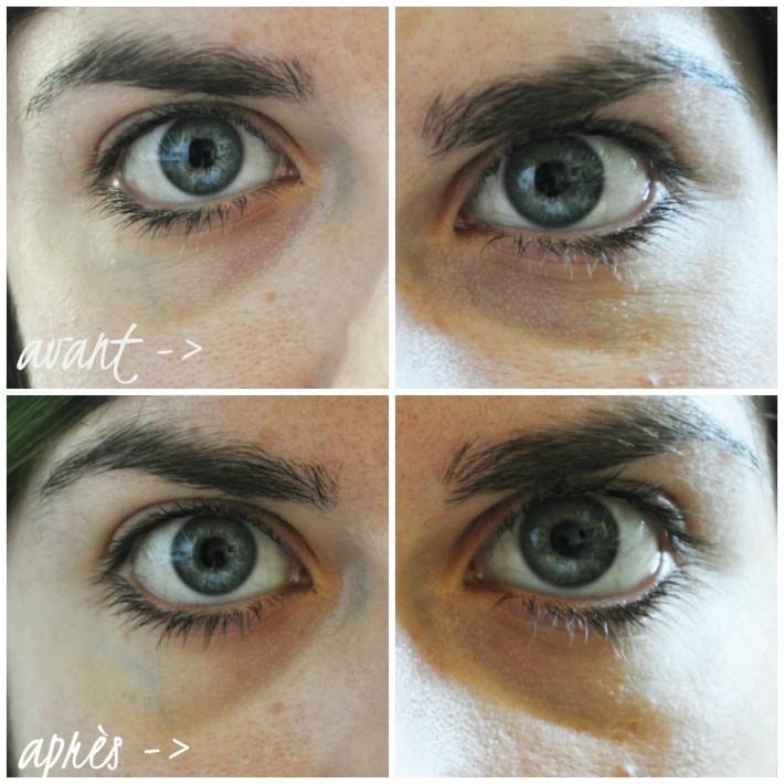 collagen eye patch etude house avant après