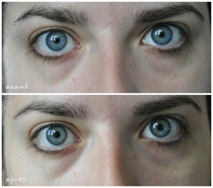avant après collagen eye patch